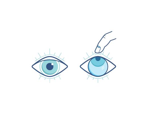 Lever l'œil et retirer la lentille avec les doigts.