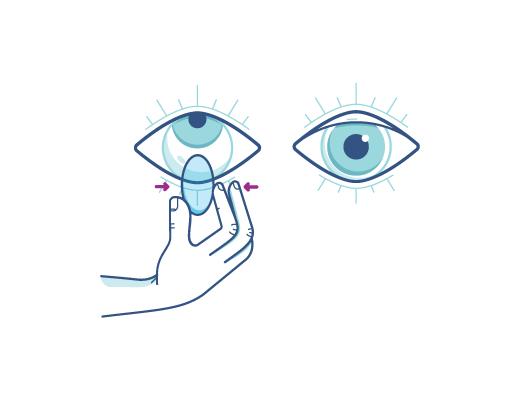 Presser doucement la lentille pour enlever la lentille de contact.