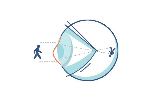 Illustration d'un œil d'une personne astigmate.