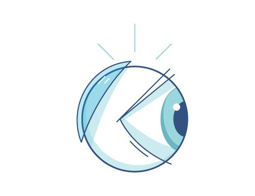 Illustration d'une lentille de contact derrière un globe oculaire.