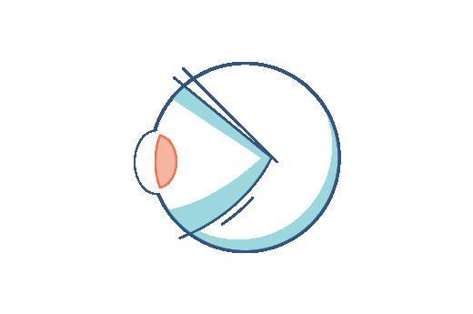 Illustration de l'œil d'une personne presbyte.