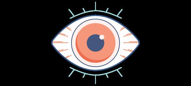 Illustration d'un œil sec, rouge et douloureux.