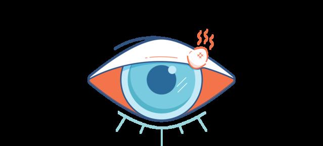 Illustration d'un oeil rouge avec un orgelet rouge et douloureux.